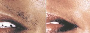Before and after Laser hair removal in Glasgow's Dr McKeown's clinic