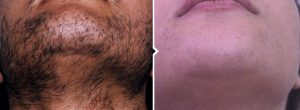 Female before and after photos of laser hair removal in Glasgow