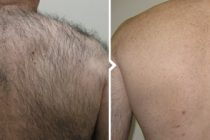 Man's back before and after laser hair removal in Glasgow